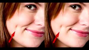 if you dimples in your cheeks what it really means