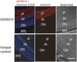 photoreceptor avascular privilege is shielded by soluble vegf