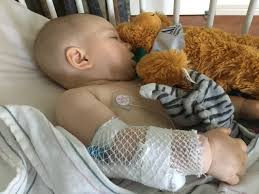 foap com injured baby lying on bed with electrodes on chest stock