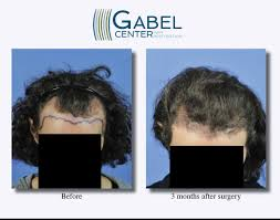 hair transplant month by month pictures watch a patient s real time growth after 3439 grafts gabel hair