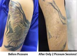 pick picosure for the best tattoo removal results in los angeles