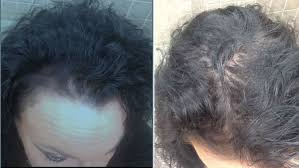 wen hair care lawsuit see photos of hair loss