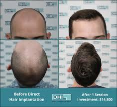 dhi hair transplant reviews hair transplant cost dhi australia