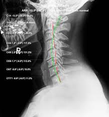 chiropractic biophysics graybar chiropractic and rehabilitation
