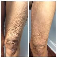pure skin laser clinic private body treatment salon in