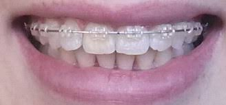 mumsnet overbite still not happy with teeth after braces