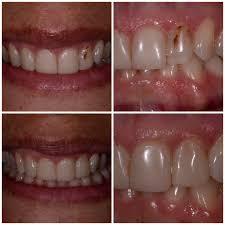 halloween city davie florida smiles by design 21 photos general dentistry 4450 weston rd