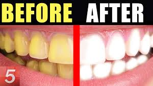 whiten teeth instantly at home life hacks youtube