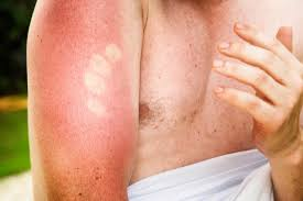 sun ls for psoriasis for sale 10 benefits of vitamin e oil