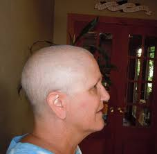 Hair Loss From Chemo My Journey Through Bc Cardiomyopathy U0026 Stage Iv Breast Cancer