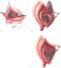 Attic Ear Anatomy Concepts And Principles Of Restitutional Ear Surgery Ento Key