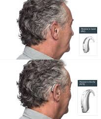 Anatomy Behind The Ear Hearing Aids In Anchorage Ak Our Hearing Products