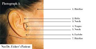 hairstyles that cover face lift scars minimal scarring best facelift beverly hills