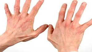 Rug Burn Infection Symptoms 21 Home Remedies For Burns On Fingers And Arms