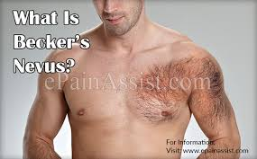 becker s nevus causes and treatment for patch of hair growth on