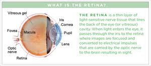Diabetic Blindness Diabetic Retinopathy The American Society Of Retina Specialists