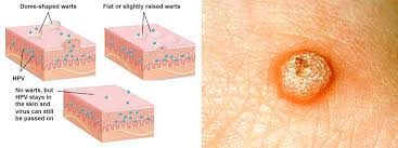 why do ingrown hairs hurt how can i know if my bumps are genital warts vs ingrown hair