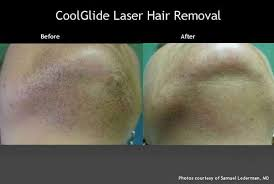 vectus laser hair removal reviews laser hair removal before after photos winston salem nc carolina