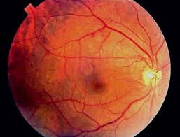 Diabetes Causing Blindness Diabetic Retinopathy Practice Essentials Pathophysiology Etiology