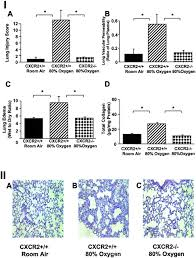 Breslow Home Design Livingston Nj by Cxcr2 Is Critical To Hyperoxia Induced Lung Injury The Journal