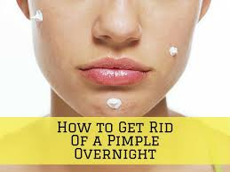 How To Get Rid Of Blind Pimples How To Get Rid Of Acne Overnight Fast Home Treatment For Scabbed