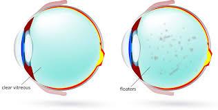 100 pdf vitreo retinal surgery progress iii vitamins for