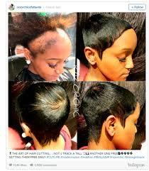 hairstylist frees woman with severe traction alopecia hair loss