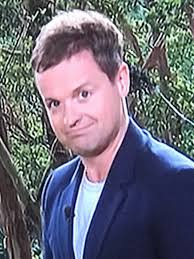 declan donnelly hair transplant i m a celebrity 2017 fans think declan donnelly has had hair