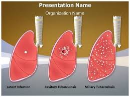 powerpoint design lungs tuberculosis types powerpoint presentation template is one of the