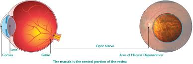 Does Macular Degeneration Always Lead To Blindness Macular Degeneration Rand Eye Institute