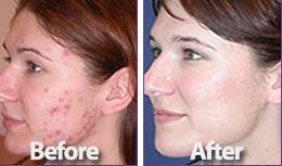 blu light therapy for acne how blue acne treatment works
