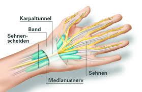 schmerzen in der handfläche akromegalie taube hände karpaltunnelsyndrom leben mit