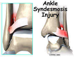 Posterior Inferior Tibiofibular Ligament High Ankle Sprain Ankle Syndesmosis Eorthopod Com