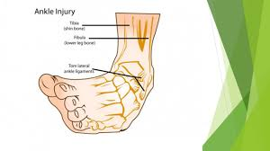 Tibiofibular Ligament Injury Ankle Bones And Ligaments Lateral Ankle Ligaments Ppt Download