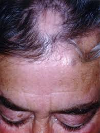 pubic hair disappearing alopecia areata guide causes symptoms and treatment options