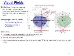 Blind Spot In Left Eye Visual System Examination Ppt Online Download