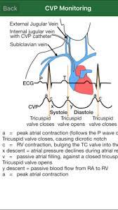 Icu Nurse Job Description For Resume by Best 25 Icu Nursing Ideas On Pinterest Cardiac Nursing