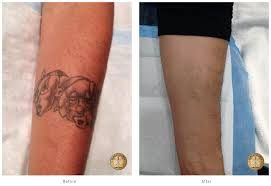 laser tattoo removal fredericksburg surgical arts of virginia