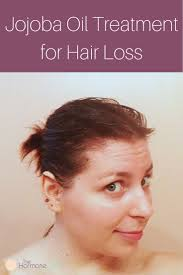 best 25 treatment for hair loss ideas on pinterest hair loss