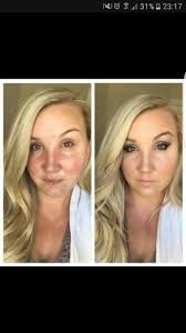 best 20 makeup for rosacea ideas on pinterest best foundation