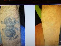 11 best tattoo removal at las vegas dermatology images on