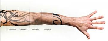 new york tattoo removal laser tattoo removal nyc