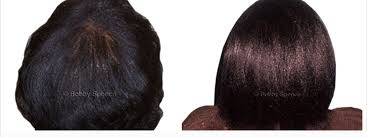 the thin hair african american african american women hair loss african american female hair