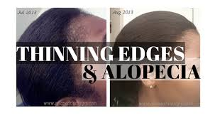hairr styles for woman with alopica how to regrow thinning edges