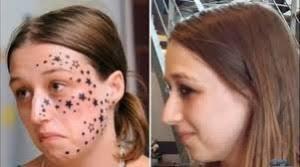 laser tattoo removal procedure delamina