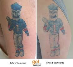 our picosure made a huge dent in this client u0027s tattoo after 2