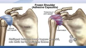 fix frozen shoulder tv show adhesive capsulitis cure