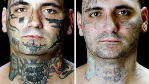 tattoo removal process benefits risks diseases lab