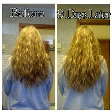 hair skin and nails hair growth results images