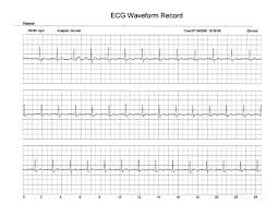 comparison of handheld 1 lead ecg ekg recorders